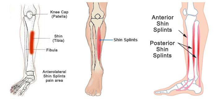 Shin splints physiology