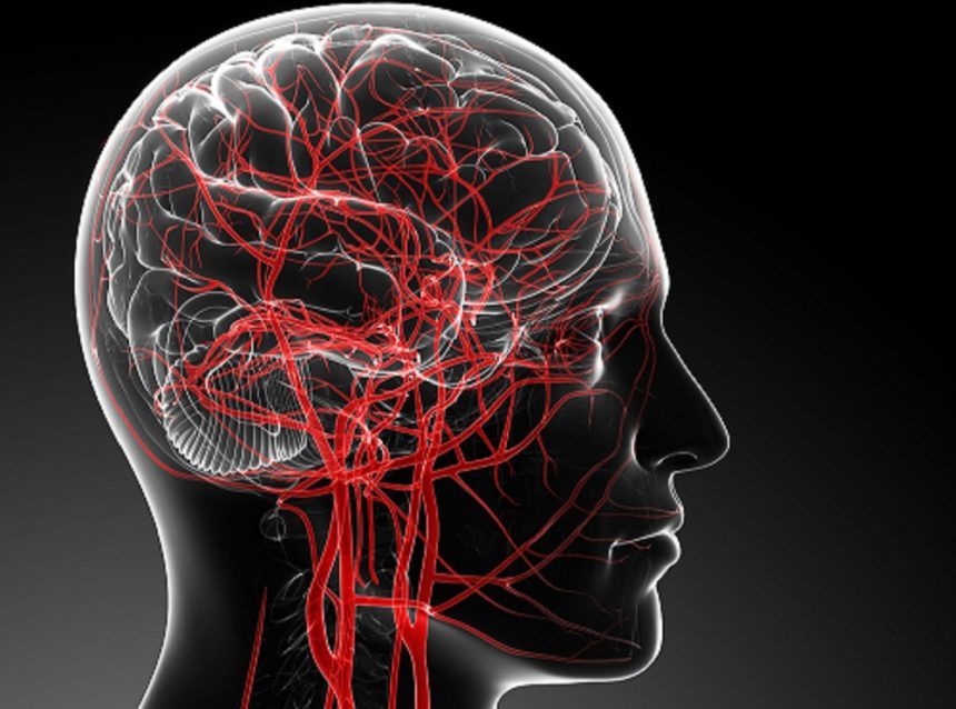 Increased blood distribution in the brain leads to higher intracranial pressure and further to possible headache after running
